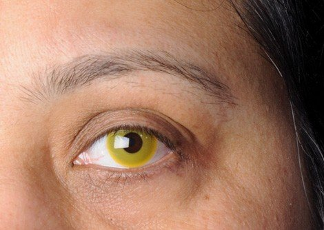 yellow eyes contacts - photo #11